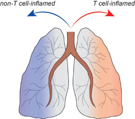 Lung schematic